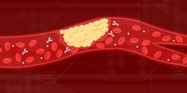 علت لخته شدن خون بیماران مبتلا به کووید-۱۹ کشف شد