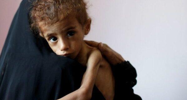 گوترش: یمن در آستانه بزرگترین قحطی جهان قرار دارد